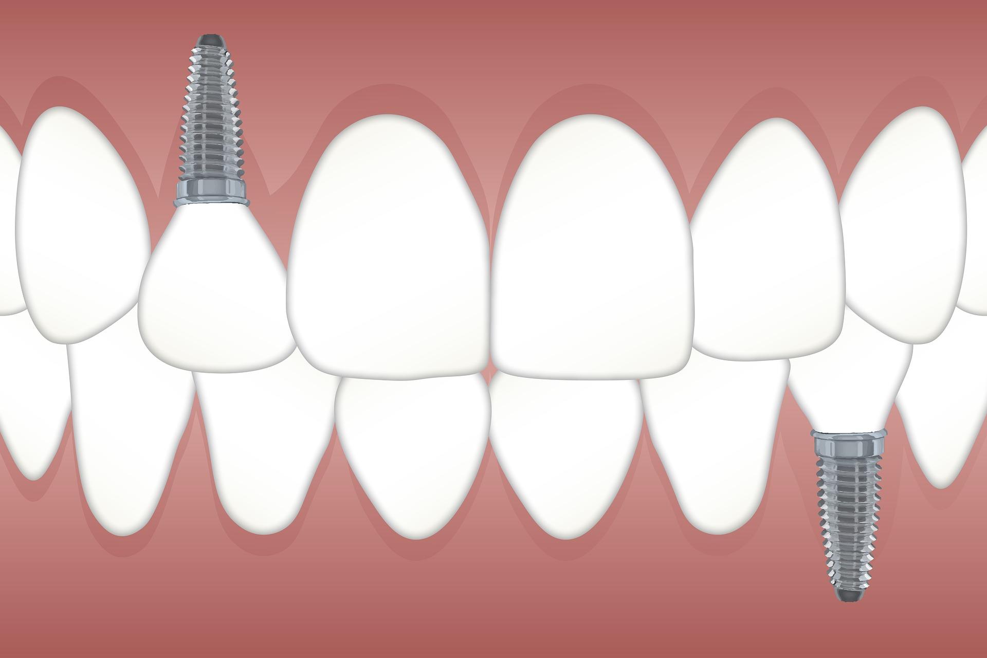 Implantes dentales Clínica Mazuecos
