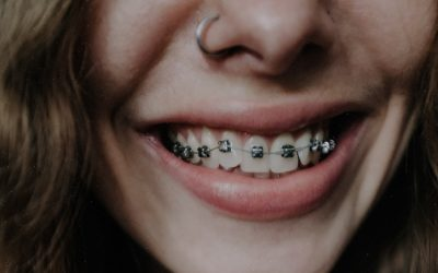 Usar ortodoncia: ¿conoces sus beneficios?